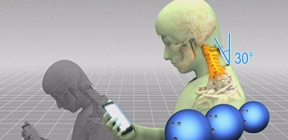 Overbelasting wervelkolom bij smartphone- en laptopgebruik